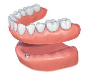 straumann-implant-ball-1