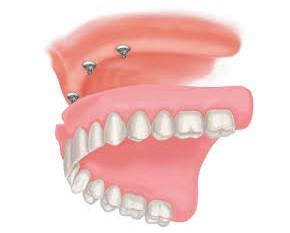 straumann-implant-ball-2